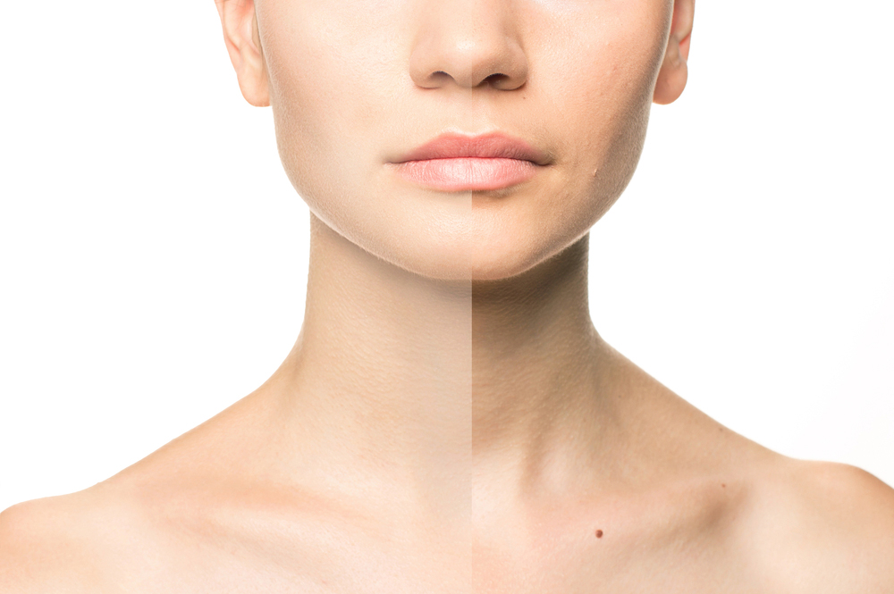 FACE, NECK AND DÉCOLLETAGE LIFT – USING ULTHERAPY® (HIFU)